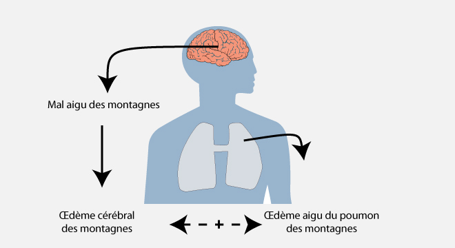 Mal d`altitude, Oedème pulmonaire