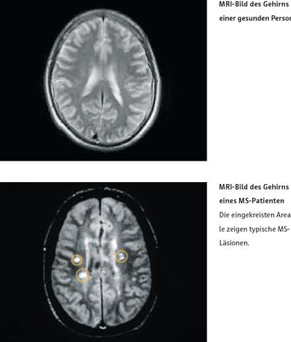 MS MRI gesundes und betroffenes Gehirn