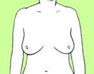Brustkrebs Selbstkontrolle