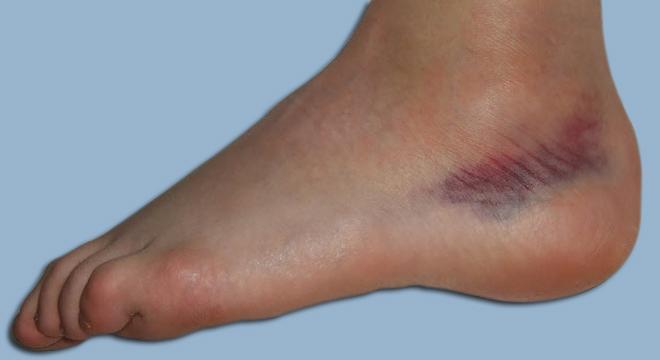 Bänderzerrung oberes Sprungelenk: Schmerz, Schwellung, Bluterguss