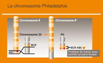 Leucémie myéloïde chronique (LMC) - Causes
