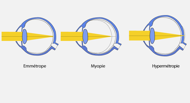 Amétropie   hypermétropie, myopie, astigmatisme, presbytie cfab8e01bf27