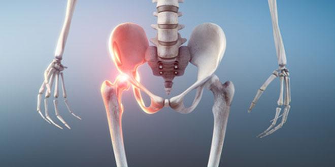 Luxation congénitale de la hanche, Malformation de la hanche
