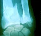 fracture osseuse de l'avant-bras