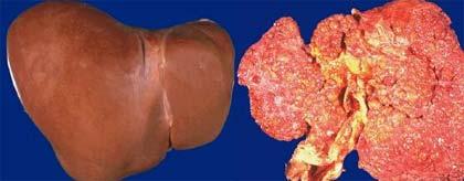 cirrhose du foie mort