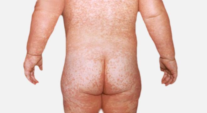 Masern: eine akute ansteckende Virus-Infektionserkrankung