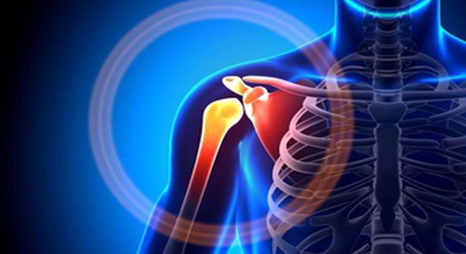 Schulterverrenkung: Auskugeln der Schulter meist nach Sturz